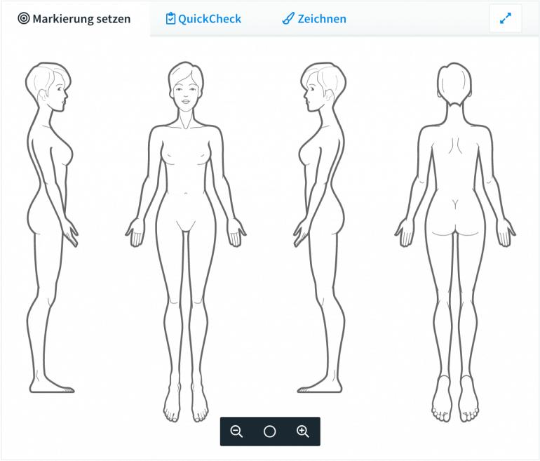Bodychart Skizze zum visuellen Dokumentieren
